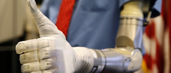 Two Pakistani engineers have developed a prosthetic arm which can be controlled using the brain